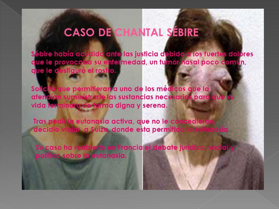 CASO DE CHANTAL SÉBIRE