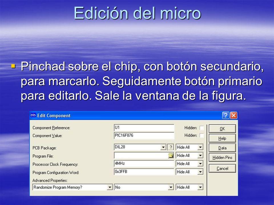 Edición del micro