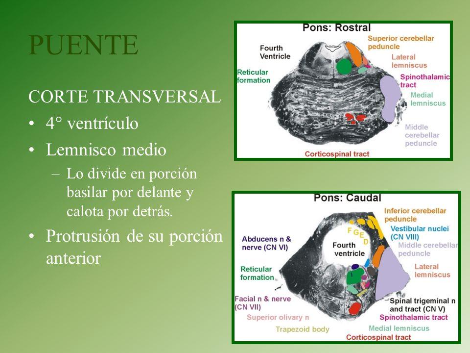 PUENTE CORTE TRANSVERSAL 4° ventrículo Lemnisco medio