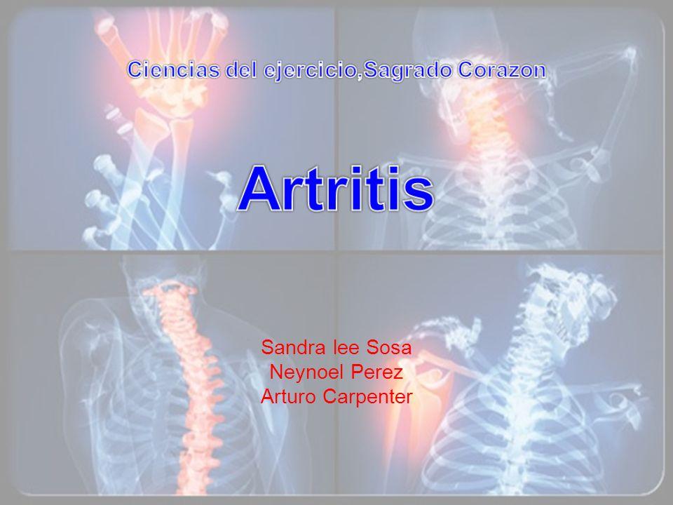 Ciencias del ejercicio,Sagrado Corazon Artritis