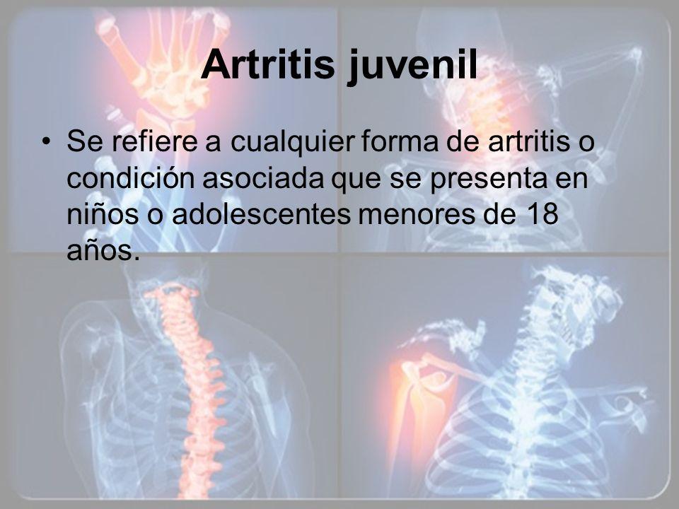Artritis juvenilSe refiere a cualquier forma de artritis o condición asociada que se presenta en niños o adolescentes menores de 18 años.