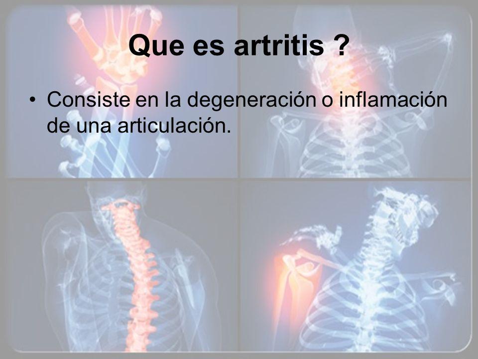 Que es artritis Consiste en la degeneración o inflamación de una articulación.