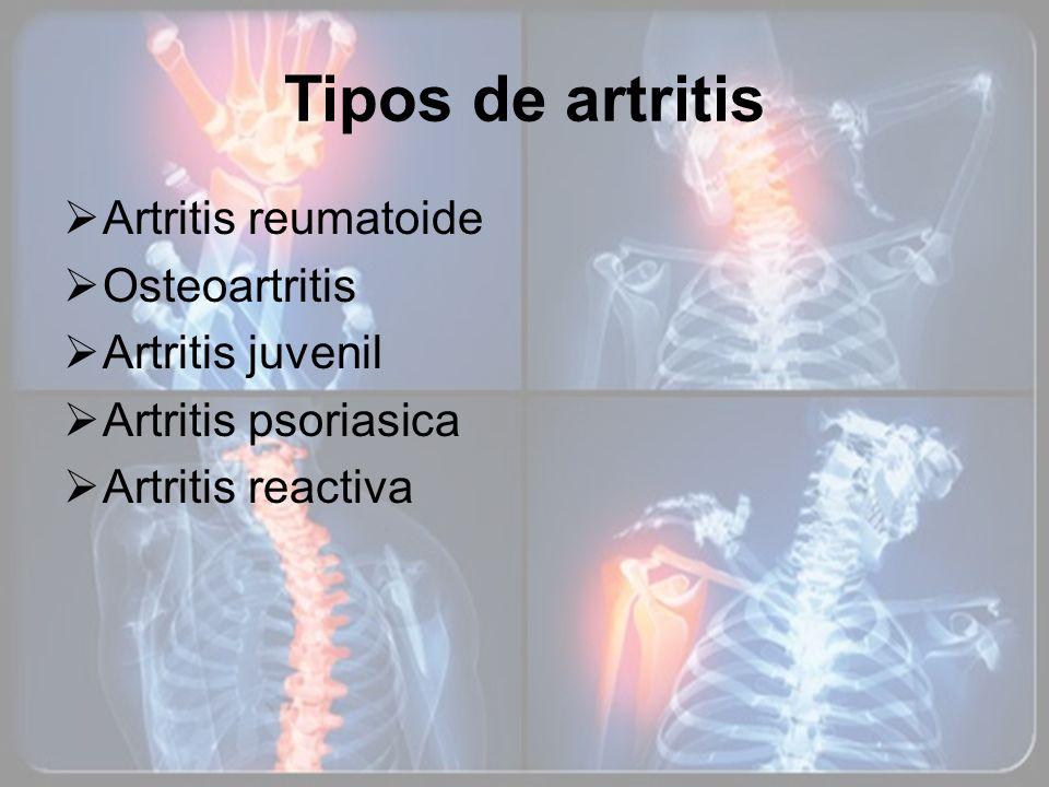 Tipos de artritis Artritis reumatoide Osteoartritis Artritis juvenil