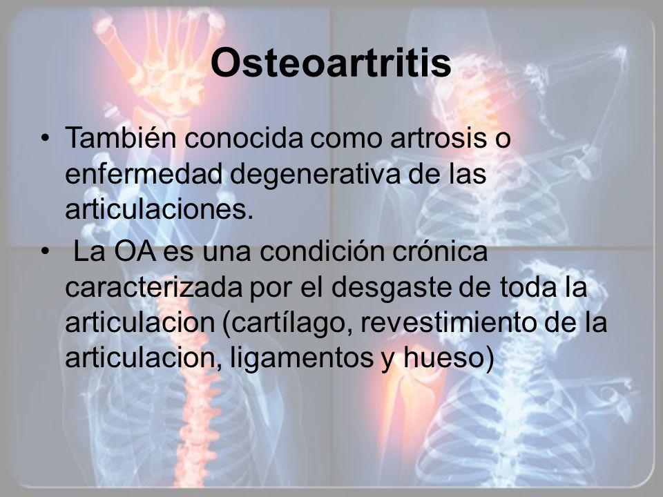 OsteoartritisTambién conocida como artrosis o enfermedad degenerativa de las articulaciones.
