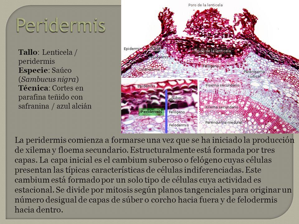 Peridermis Tallo: Lenticela / peridermis Especie: Saúco (Sambucus nigra) Técnica: Cortes en parafina teñido con safranina / azul alcián.