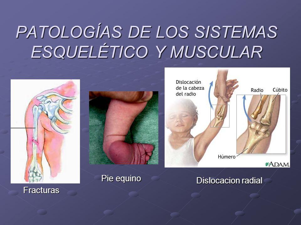 PATOLOGÍAS DE LOS SISTEMAS ESQUELÉTICO Y MUSCULAR