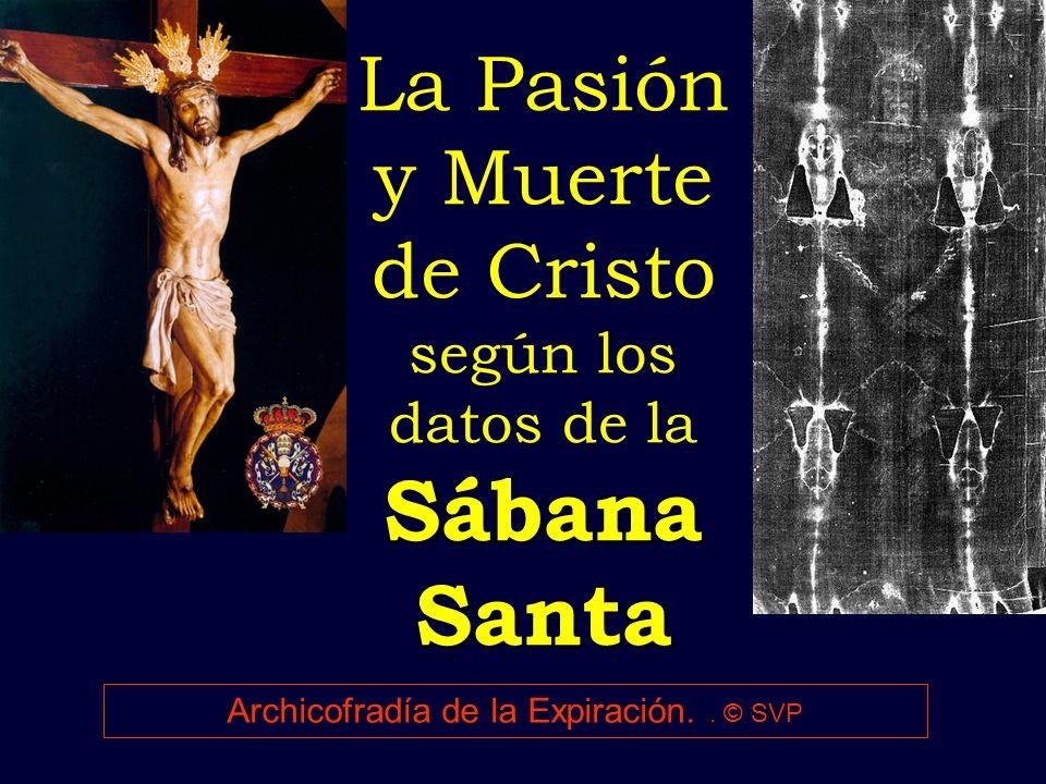 La Pasión y Muerte de Cristo según los datos de la Sábana Santa