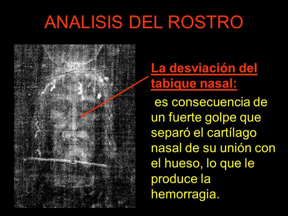 ANALISIS DEL ROSTRO La desviación del tabique nasal: