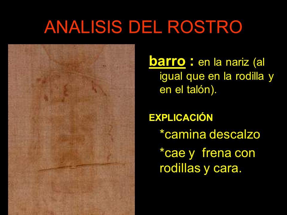 ANALISIS DEL ROSTRO barro : en la nariz (al igual que en la rodilla y en el talón). EXPLICACIÓN. *camina descalzo.