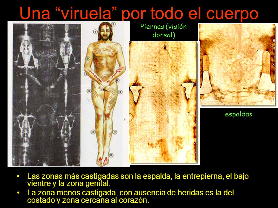 Una viruela por todo el cuerpo