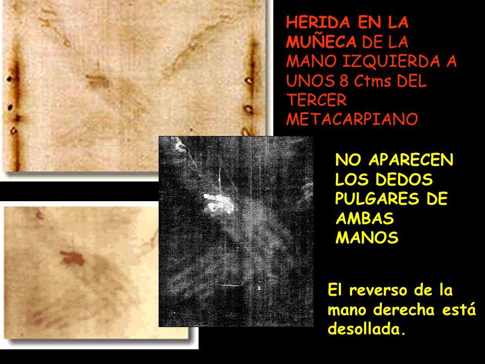 HERIDA EN LA MUÑECA DE LA MANO IZQUIERDA A UNOS 8 Ctms DEL TERCER METACARPIANO.