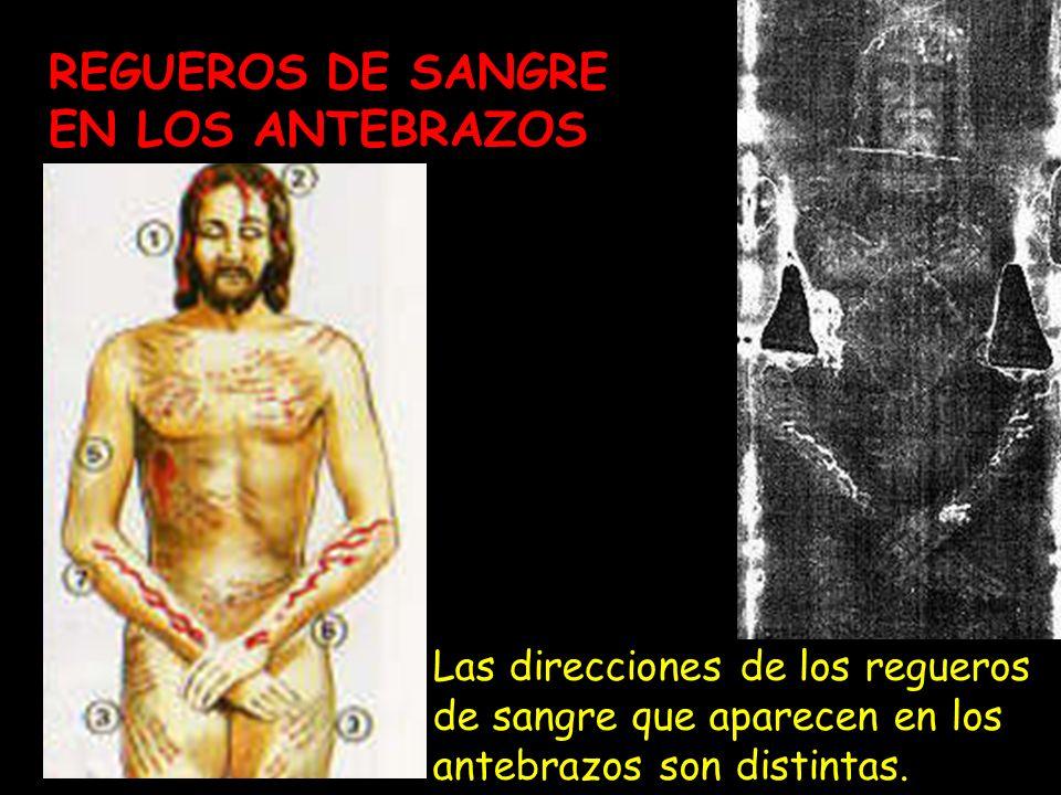 REGUEROS DE SANGRE EN LOS ANTEBRAZOS