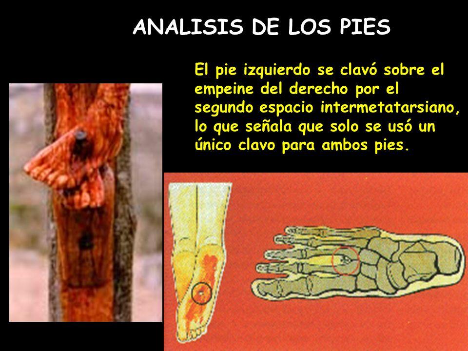 ANALISIS DE LOS PIES