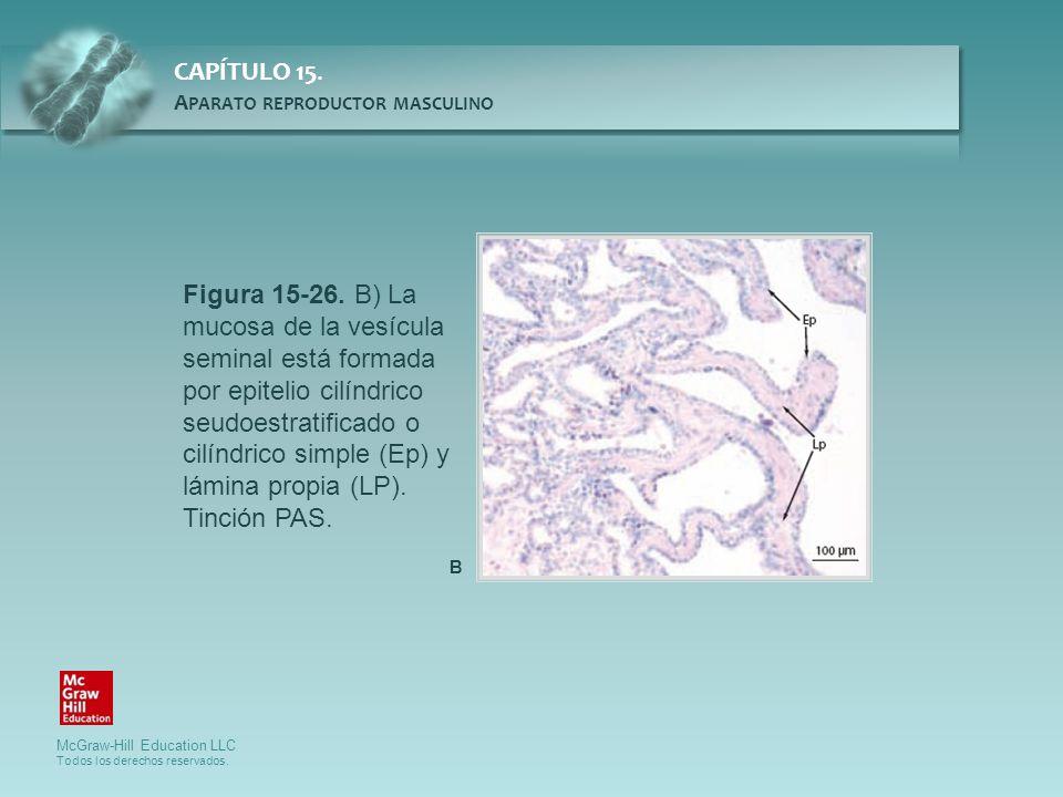 Figura 15-26. B) La mucosa de la vesícula seminal está formada por epitelio cilíndrico seudoestratificado o cilíndrico simple (Ep) y lámina propia (LP). Tinción PAS.