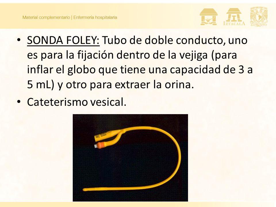 SONDA FOLEY: Tubo de doble conducto, uno es para la fijación dentro de la vejiga (para inflar el globo que tiene una capacidad de 3 a 5 mL) y otro para extraer la orina.