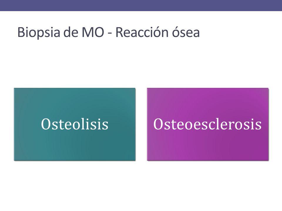 Biopsia de MO - Reacción ósea