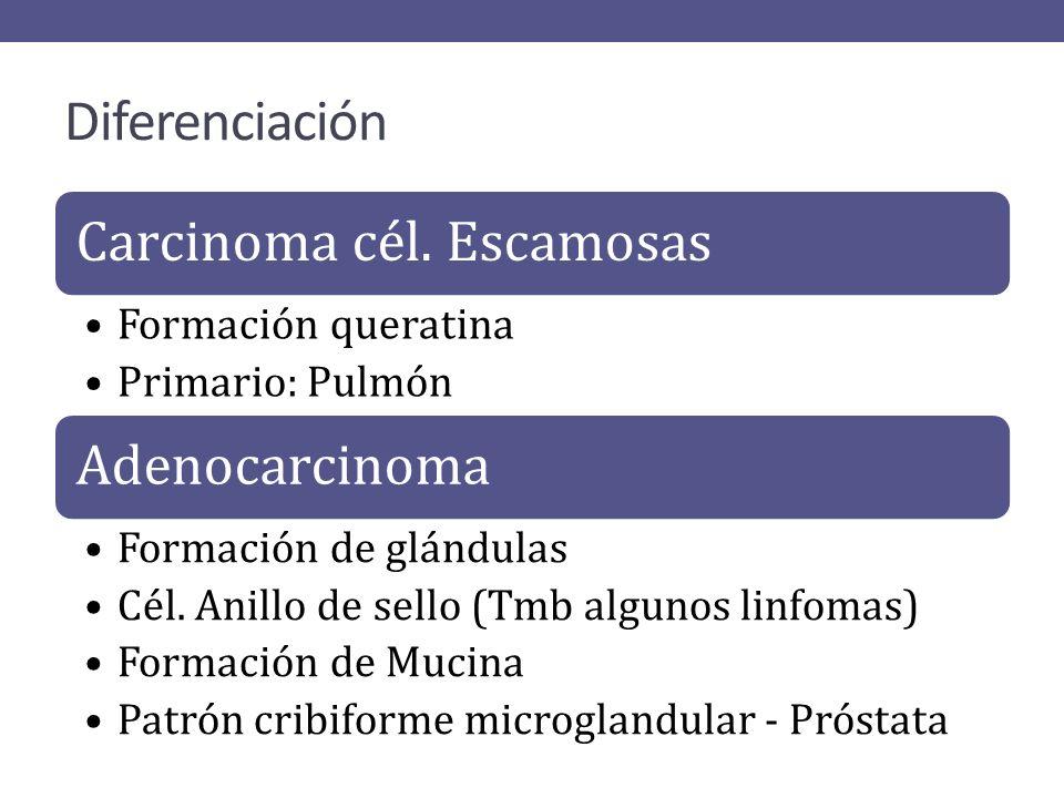 Diferenciación Carcinoma cél. Escamosas Formación queratina