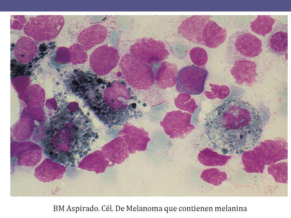 BM Aspirado. Cél. De Melanoma que contienen melanina