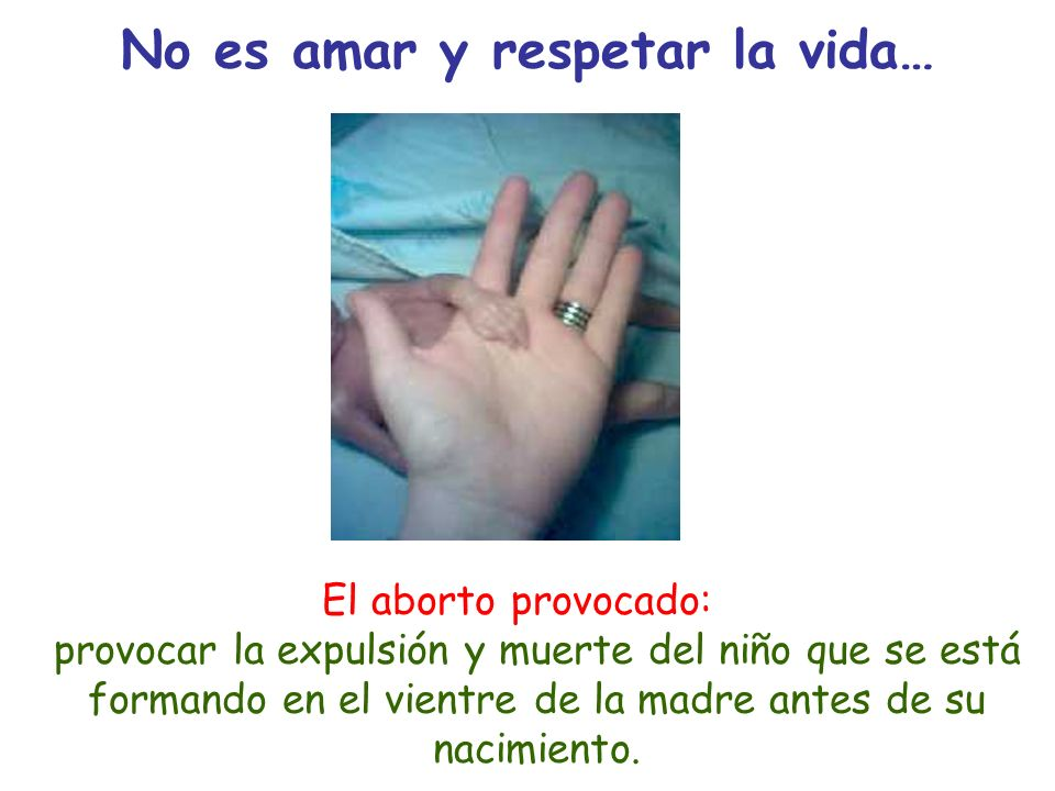 No es amar y respetar la vida…