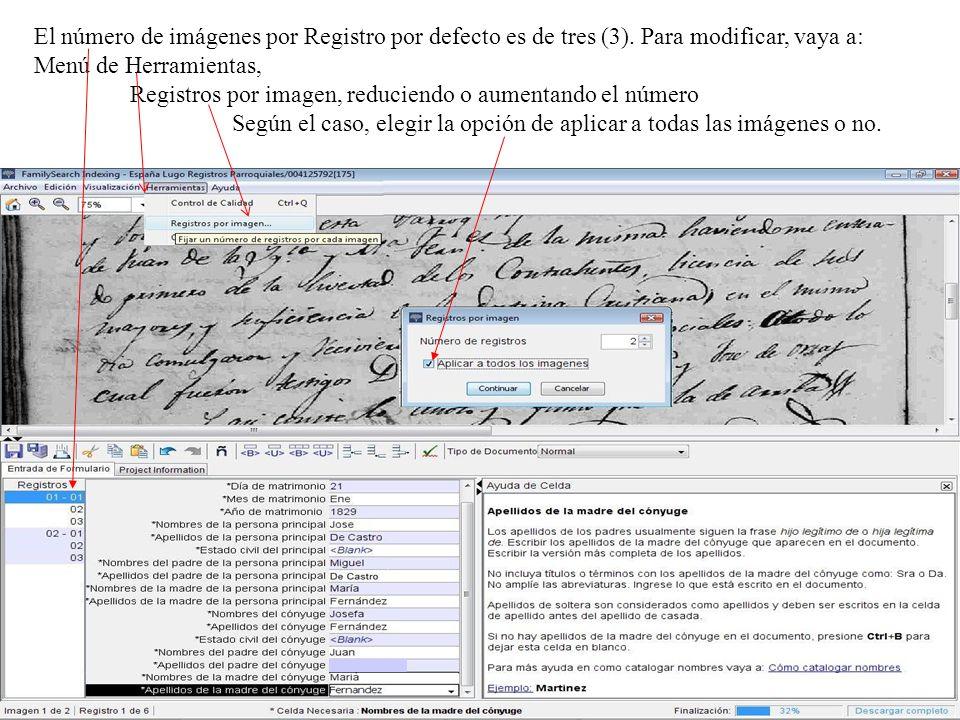 El número de imágenes por Registro por defecto es de tres (3)