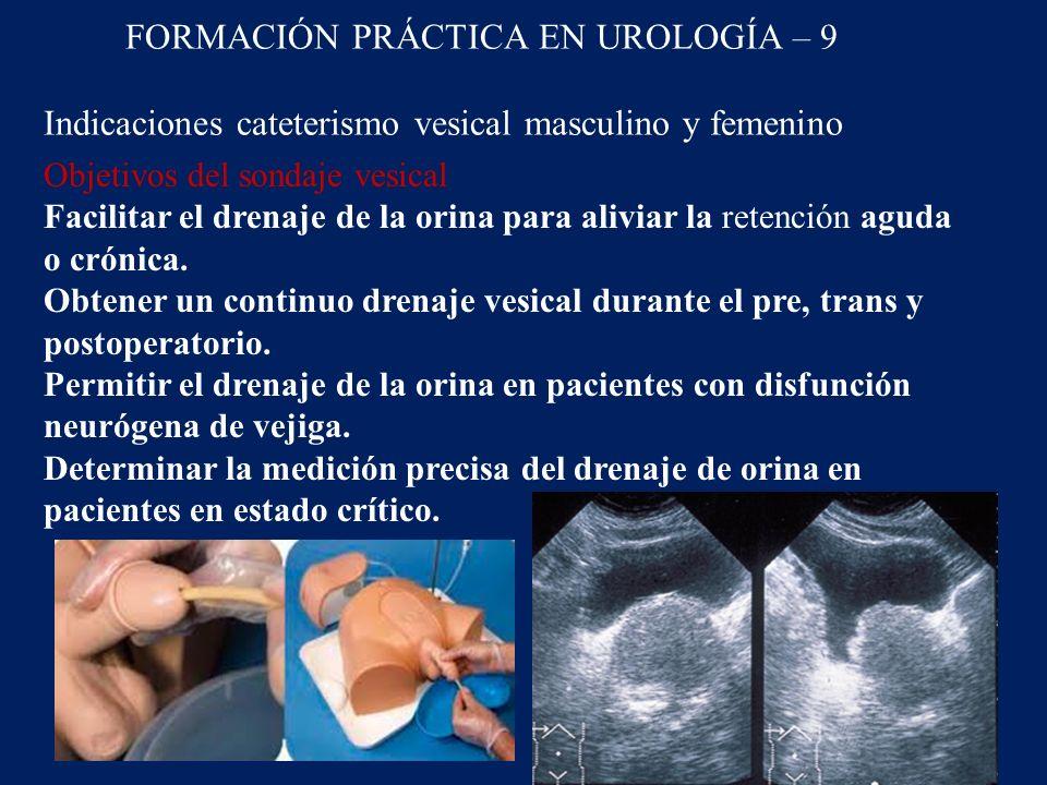 FORMACIÓN PRÁCTICA EN UROLOGÍA – 9 Indicaciones cateterismo vesical masculino y femenino