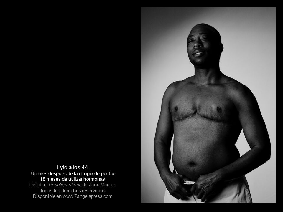 Aquí se muestra a Lyle un mes después de haberse sometido a cirugía de la parte superior , la remoción de los senos, y de continuar usando hormonas por 18 meses.