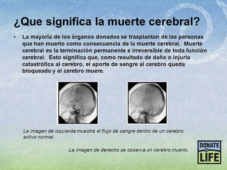 ¿Que significa la muerte cerebral