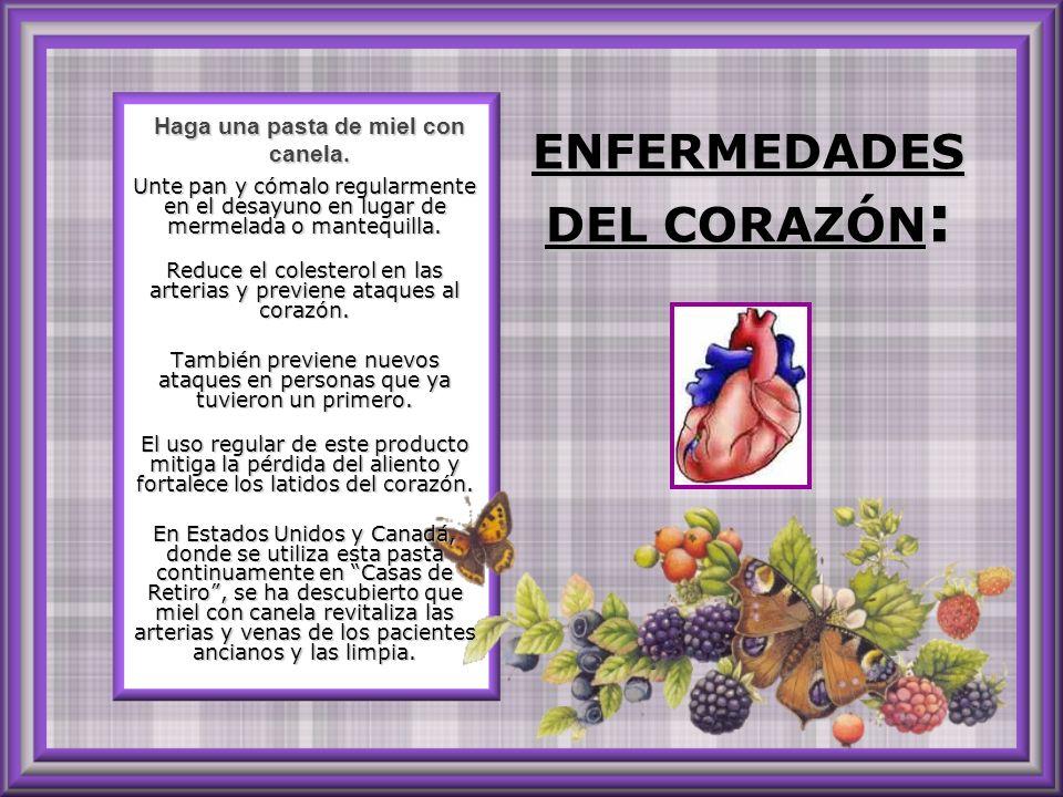 ENFERMEDADES DEL CORAZÓN: