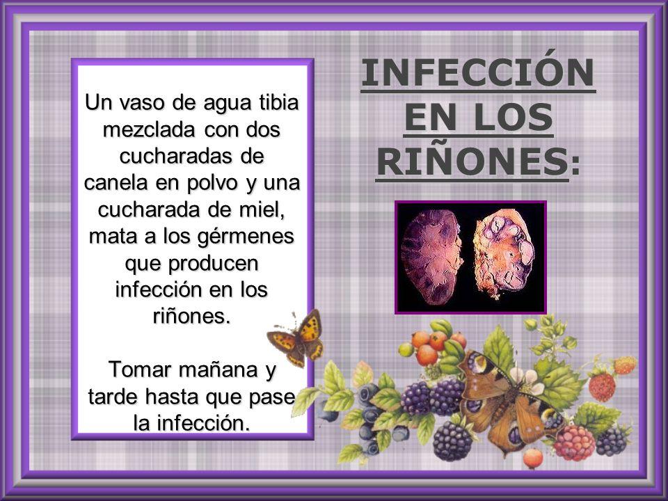 INFECCIÓN EN LOS RIÑONES: