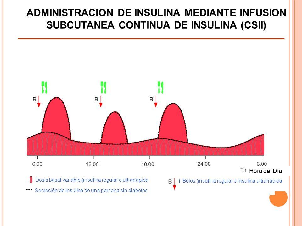 ADMINISTRACION DE INSULINA MEDIANTE INFUSION SUBCUTANEA CONTINUA DE INSULINA (CSII)