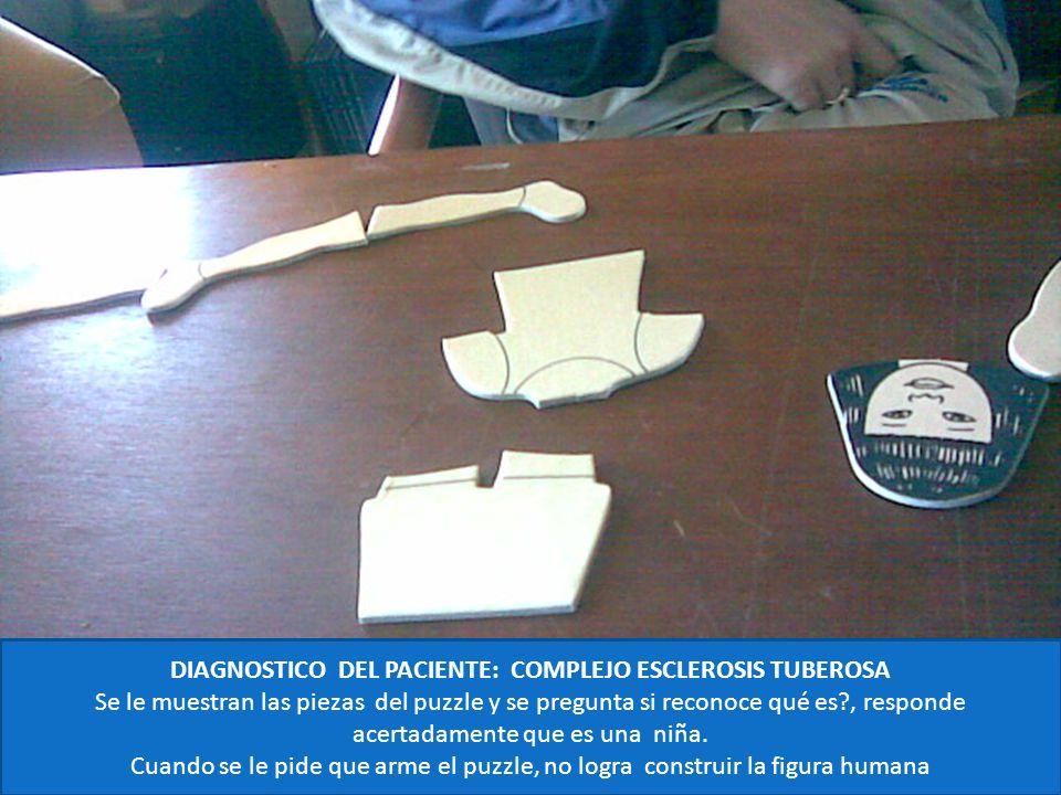 DIAGNOSTICO DEL PACIENTE: COMPLEJO ESCLEROSIS TUBEROSA