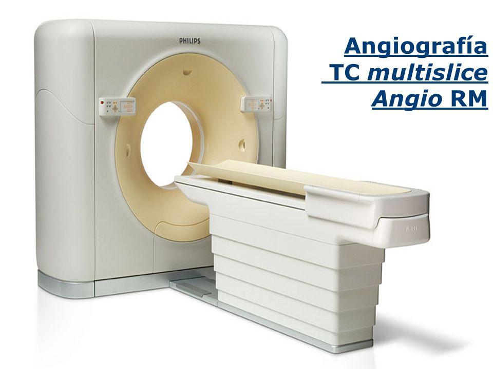 Angiografía TC multislice Angio RM