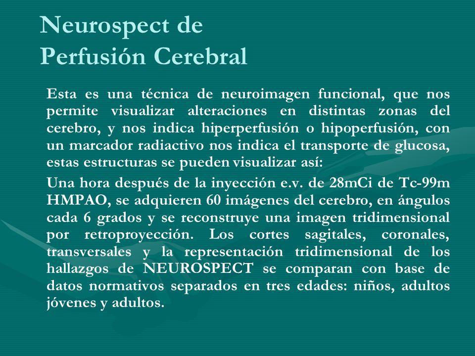 Neurospect de Perfusión Cerebral