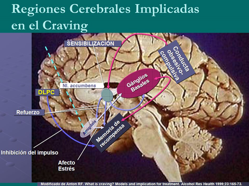 Regiones Cerebrales Implicadas en el Craving