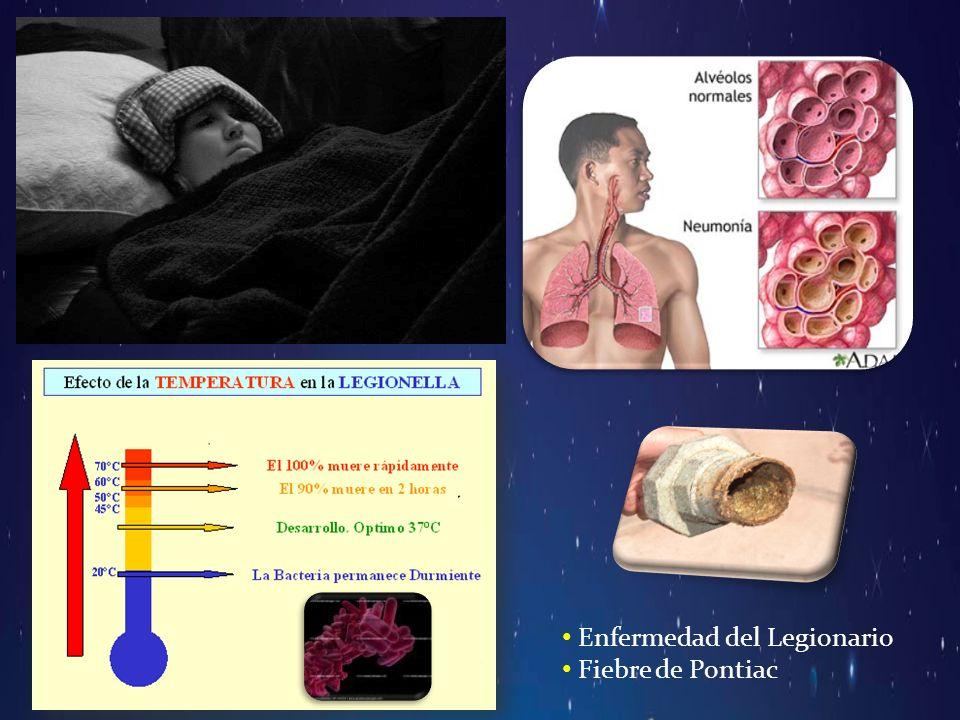 Enfermedad del Legionario