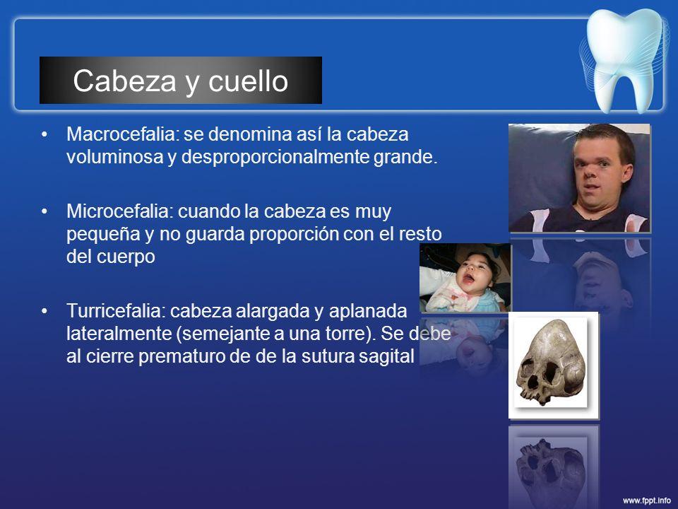 Cabeza y cuello Macrocefalia: se denomina así la cabeza voluminosa y desproporcionalmente grande.