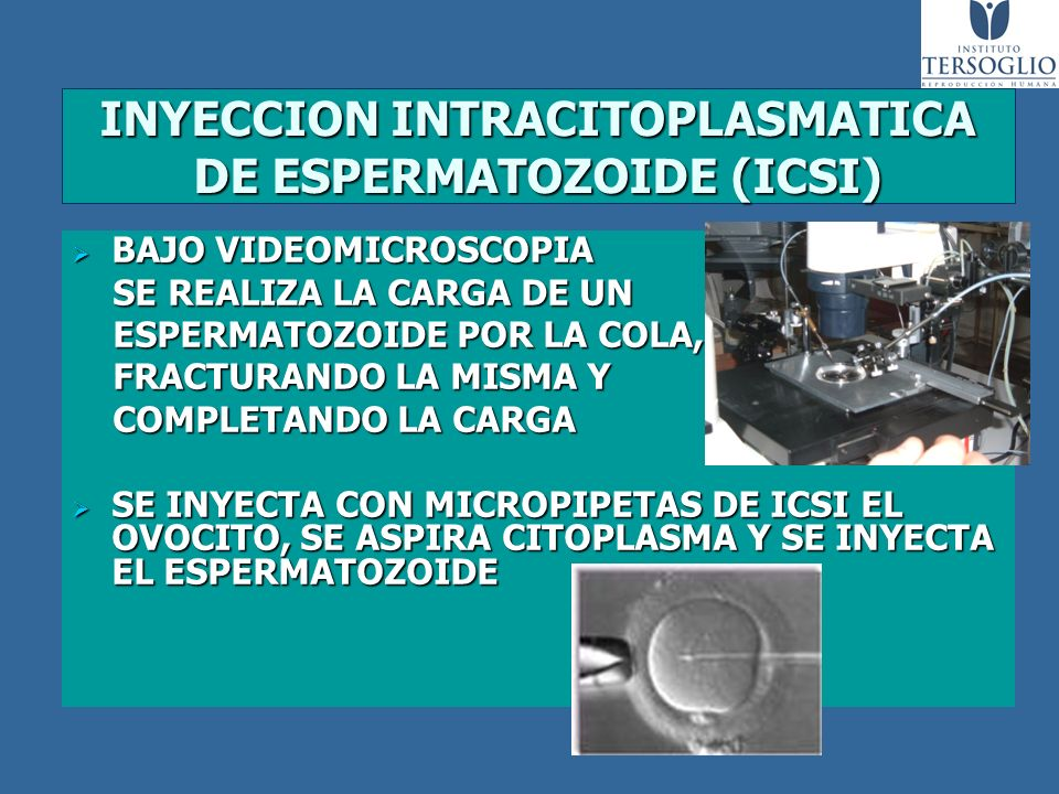 INYECCION INTRACITOPLASMATICA DE ESPERMATOZOIDE (ICSI)