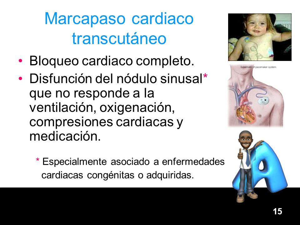 Marcapaso cardiaco transcutáneo