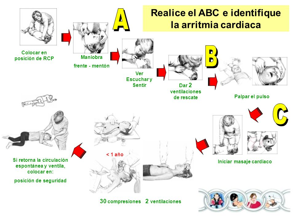 A B C Realice el ABC e identifique la arritmia cardiaca