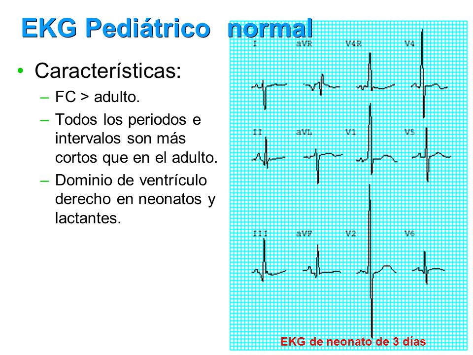 EKG Pediátrico normal Características: FC > adulto.
