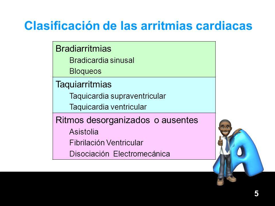 Clasificación de las arritmias cardiacas