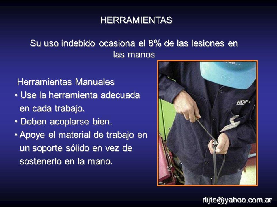 Su uso indebido ocasiona el 8% de las lesiones en las manos