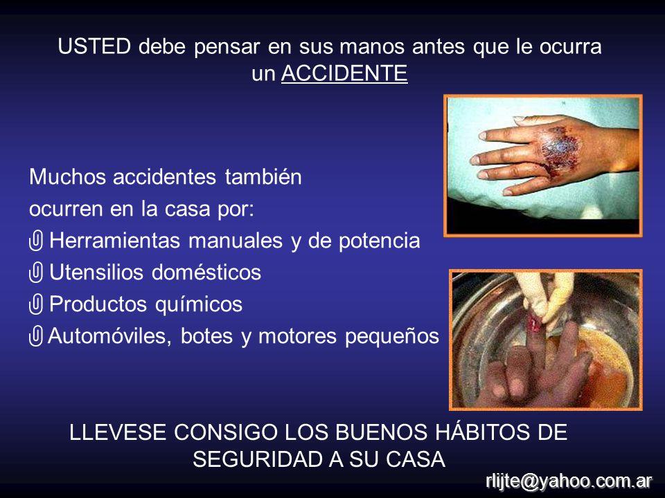 USTED debe pensar en sus manos antes que le ocurra un ACCIDENTE