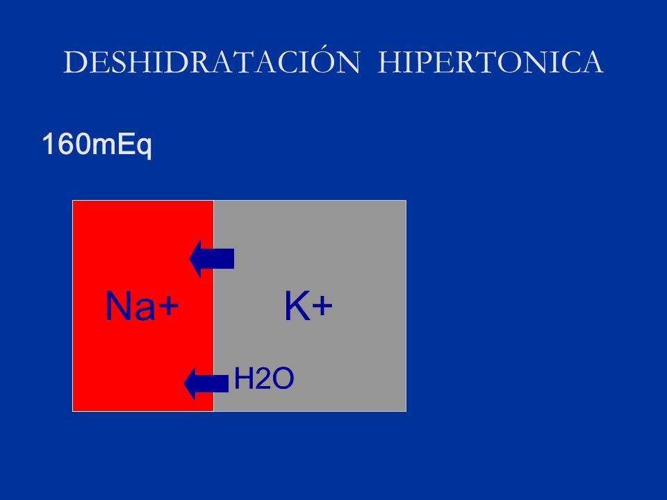 DESHIDRATACIÓN HIPERTONICA