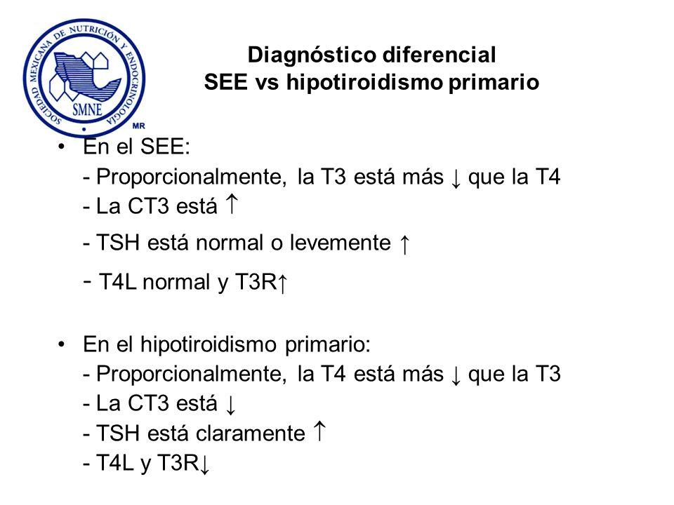 Diagnóstico diferencial SEE vs hipotiroidismo primario