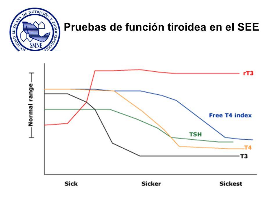 Pruebas de función tiroidea en el SEE
