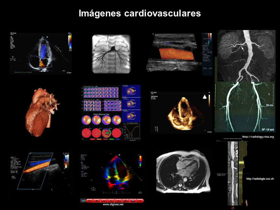 Imágenes cardiovasculares