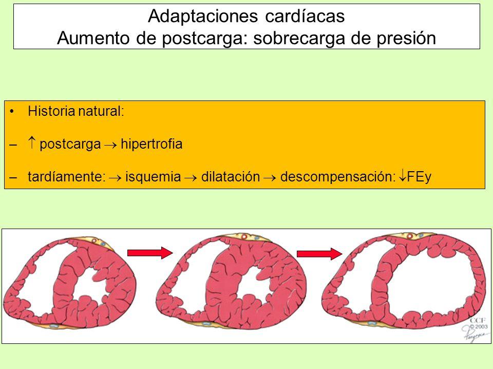 Adaptaciones cardíacas Aumento de postcarga: sobrecarga de presión