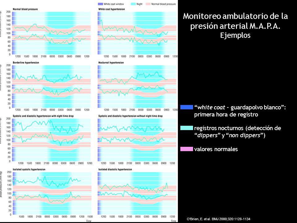 Monitoreo ambulatorio de la presión arterial M.A.P.A. Ejemplos