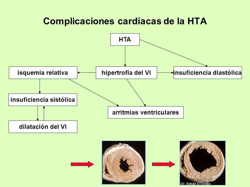 Complicaciones cardíacas de la HTA